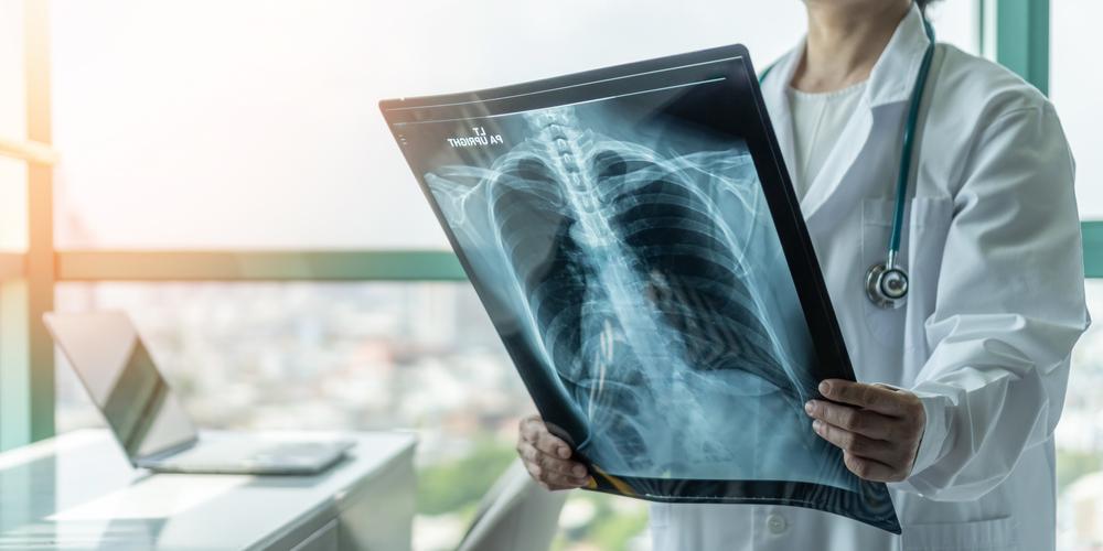 doktor diagnostikuje pacientovo pľúcne ochorenie z röntgenovej snímky